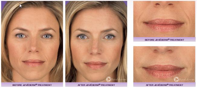 arrugas nasolabiales ácido hialurónico